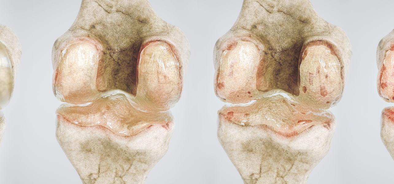acromy artrosis kezelés